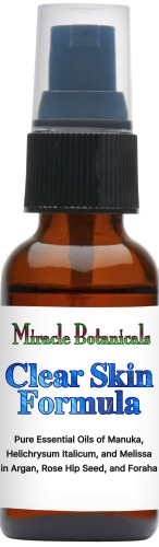 Acne Essential Oil